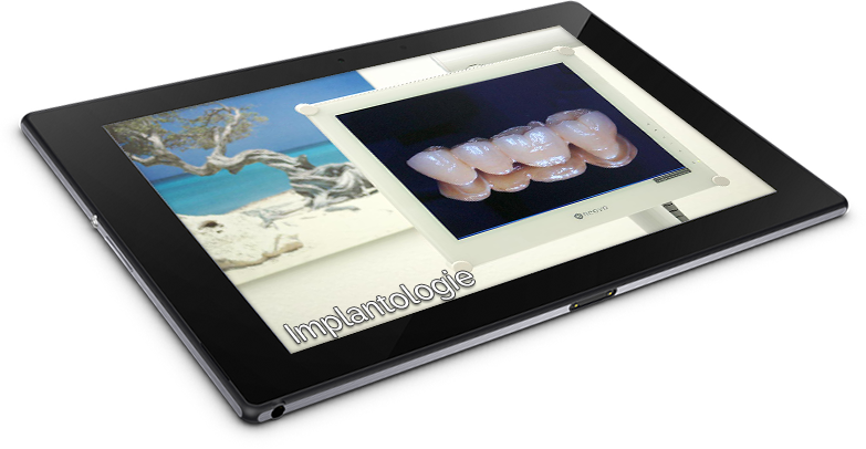 tablet_implantologie